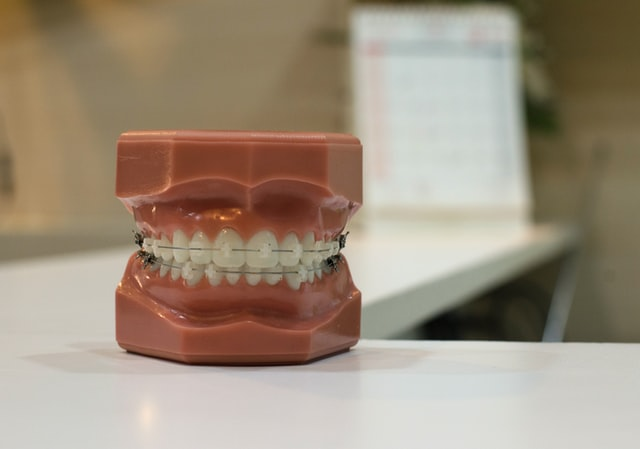 Can you get a root canal with braces?